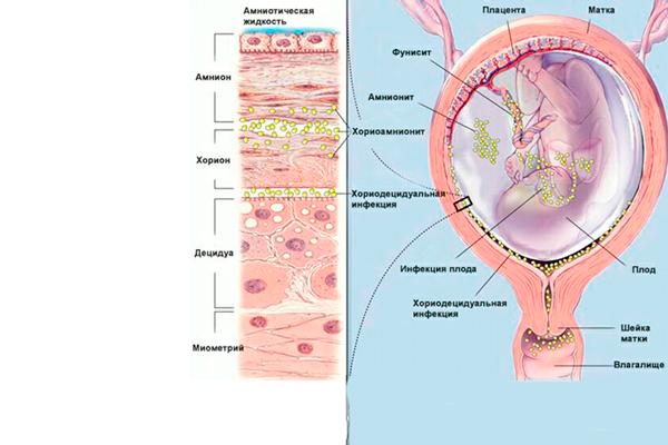 Хориомниотит в следствии проведения амниоцентеза
