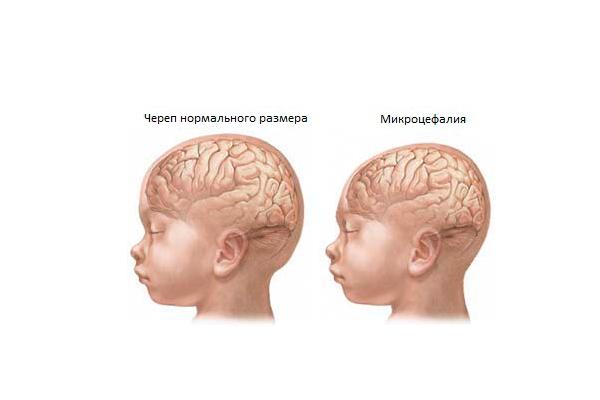 Выявление синдрома Эдвардса при процедуре исследования амниоцентеза