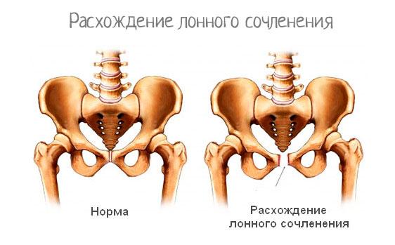Лобковые кости болят после родов