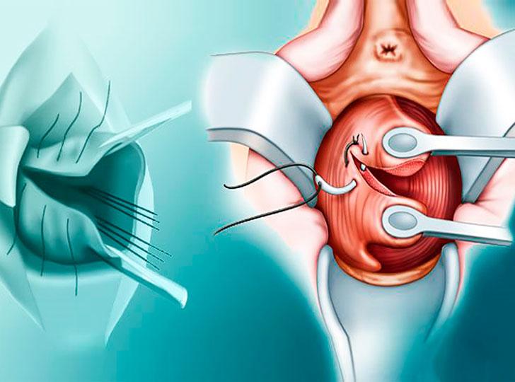 Обязательной также является профилактика развития опухолевых процессов в цервикальном канале.